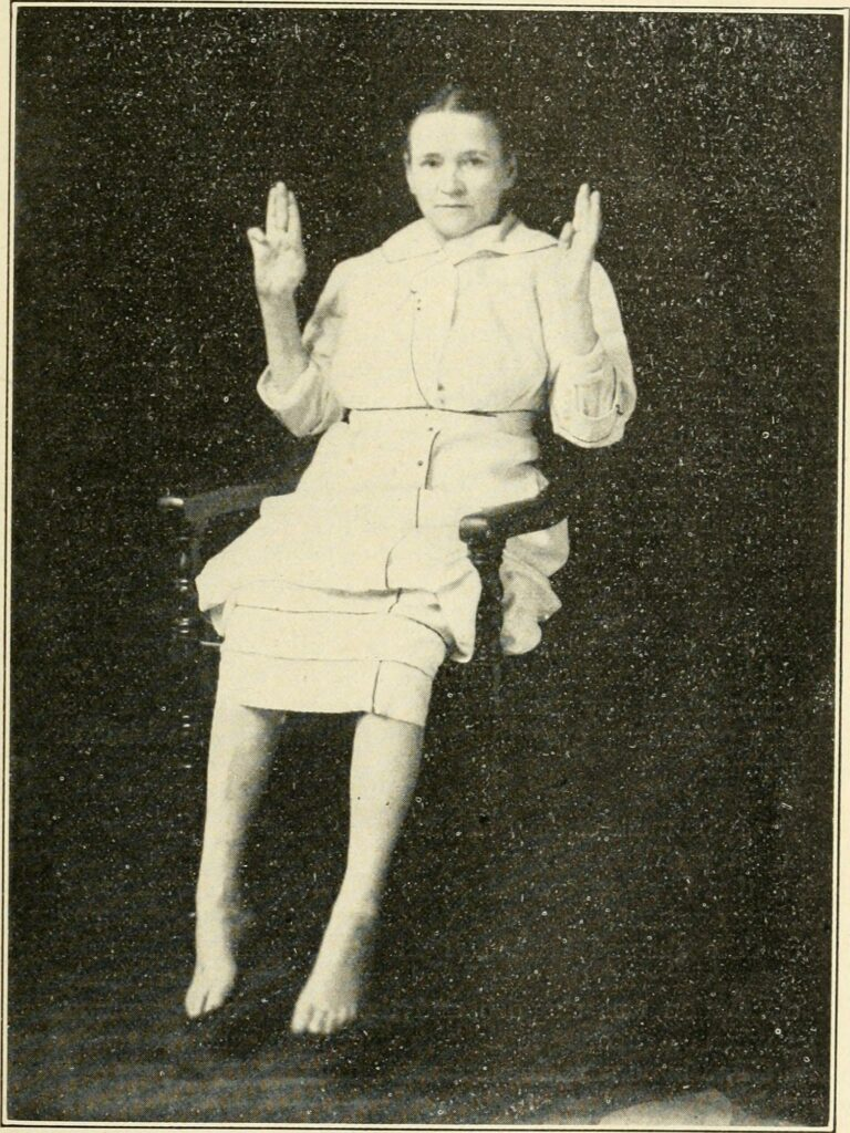 Girl with paralyzed hands.
